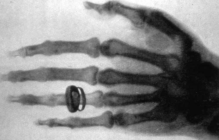 X-rax from 19th century, source WikiCommons